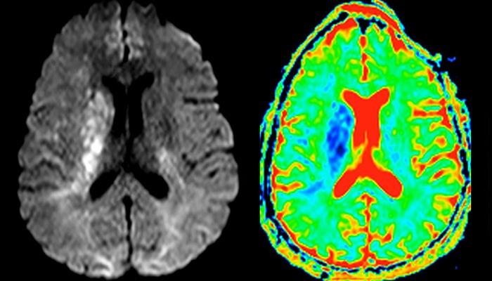 Bildgebung bei MS, Schlaganfall & Gehirntumor | Philips Healthcare