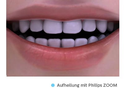 zahnverf rbung philips oral healthcare. Black Bedroom Furniture Sets. Home Design Ideas