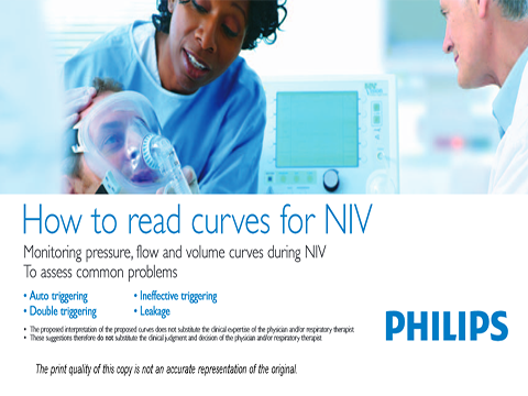 how-to-read-curves-for-niv